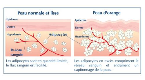 percutafeine anti cellulite