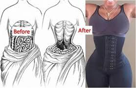 Les dangers du corset minceur